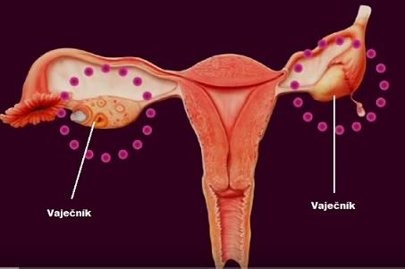 Rakovina vaječníků - příznaky, projevy, léčba