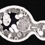 Plísňové a kvasinkové infekce – alternativní léčba