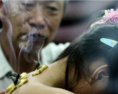 Tradiční čínská medicína - umí pomoci s mnoha zdravotními problémy