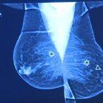 Rakovina prsu: alternativní názor a alternativní léčba