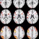 Prevence Alzheimerovy choroby je během na dlouhou trať