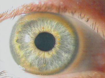Kayser-Fleischerův prstenec je jedním ze symptomů, které mohou na Wilsonovu chorobu upozornit