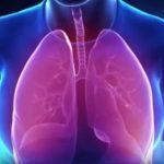 Tuberkulóza – příčiny, projevy i léčba