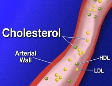 10 tipů jak zvýšit hladinu zdravého HDL cholesterolu