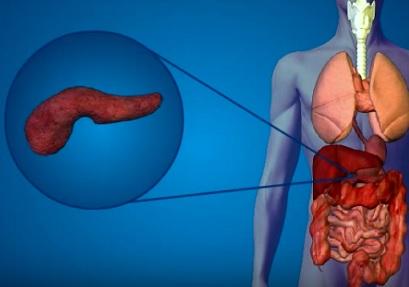 Rakovina slinivky - příznaky, příčiny a léčba