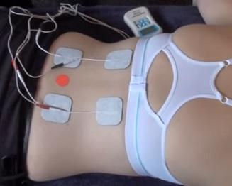 Transkutánní elektrická nervová stimulace (TENS) je přístrojová nízkofrekvenční elektroléčba bolesti pomocí pulzních proudů