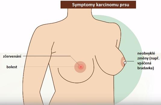 Karcinom (rakovina) prsu - příznaky, rizika a léčba