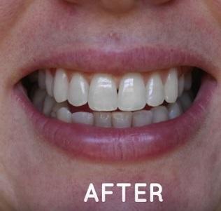 Jak mohou vypadat vaše zuby, pokud si je pravidelně budete čistit kokosovým olejem?