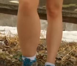 Noha na levé straně s lymfedémem.