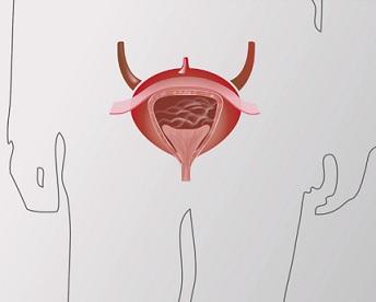 Rakovina močového měchýře