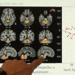 Parkinsonova choroba – příznaky této nemoci a možnosti její léčby