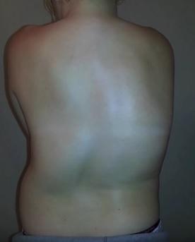 Skolioza - příznaky, příčiny a léčba