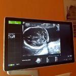 Preeklampsie v těhotenství (pozdní gestóza) – příčina, příznaky, léčba