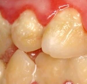 Jak na zubní kámen?
