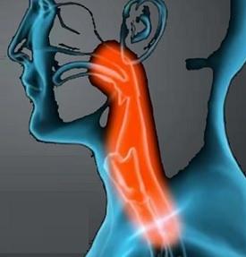 Angína (tonzilitida) - příznaky, příčiny a léčba