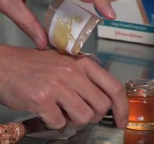 Kvalitní med dokáže velmi dobře regenerovat tkáně...