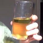 Urinoterapie a zdraví – metoda sebeuzdravování nebo nepřijatelné tabu?