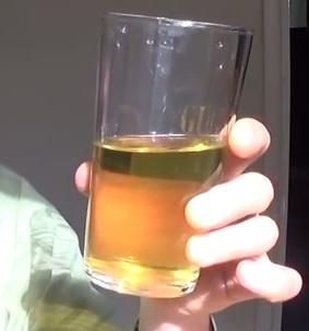 Urinoterapie a zdraví