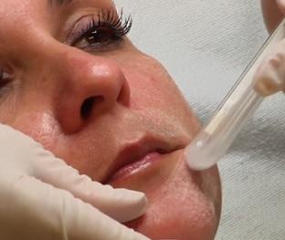 Kyselina salicylová nejen na akné - vše o jejím použití