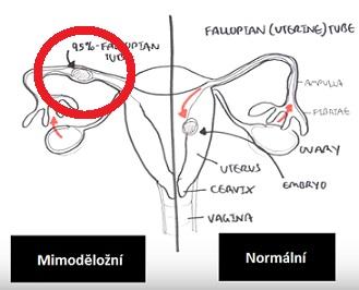 Rozdíl mezi normálním a mimoděložním těhotenstvím...