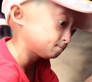 Progerie aneb syndrom předčasného stárnutí