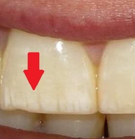 Jak na bílé skvrny na zubech?