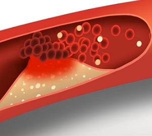 Když je špatného cholesterolu mnoho, může vést k ateroskleróze, nebezpečnému ucpávání cév.