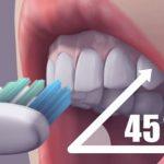 Prevence proti zubnímu kazu aneb 8 tipů jak se vyhnout zubní vrtačce
