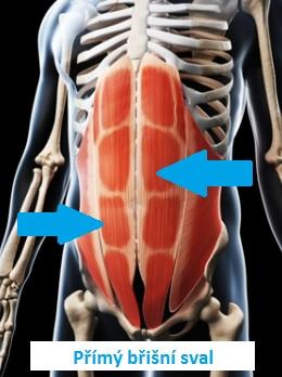 Rectus abdominis neboli přímý břišní sval.