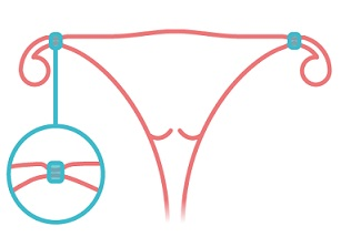 Základem ženské sterilizace je přerušení vejcovodů, vaječníky však zůstávají stejně funkční, jako byly dříve.
