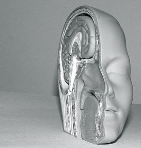 Cévní mozková příhoda (CMP, iktus) - příznaky, příčiny, léčba, rehabilitace