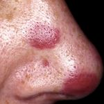 Kaposiho sarkom – příčiny, příznaky a léčba