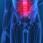 Kinezioterapie – kdy může pomáhat?