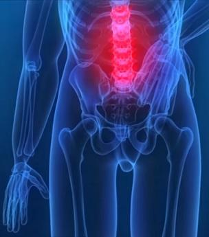 Kinezioterapie - kdy může pomáhat?