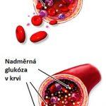 Krevní cukr či vysoká hladina cukru v krvi – jak ji ovlivnit a snížit ji?