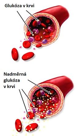 Krevní cukr či vysoká hladina cukru v krvi - jak ji ovlivnit?
