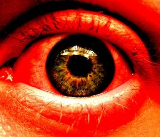 Nejčastější onemocnění očí - jaká to jsou a jak je léčit?