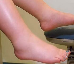 Prevence oteklých nohou