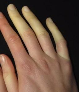 Rannými příznaky sklerodermie jsou změny barvy prstů rukou a nohou při přechodu z tepla do chladu.