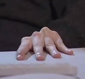 Nepříjemné křečovité sevření prstů rukou je jedním z častých projevů tetanie.