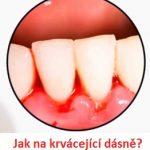 Krvácení dásní – jaké jsou příčiny a jak je vyřešit?