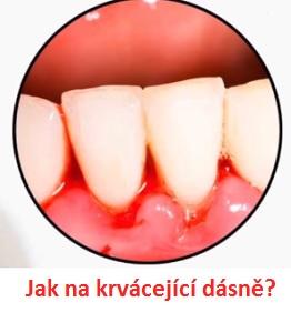 Krvácení dásní - jaké jsou příčiny a jak je vyřešit?