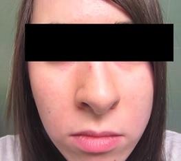 Jak na opuchlý a nateklý obličej? Máme pro vás několik tipů.