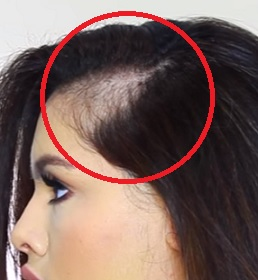 Mrkněte na přípravky a babské rady proti padání vlasů.