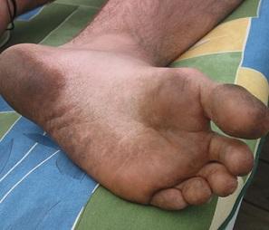 Hledáte tipy proti zápachu nohou? 11 jich pro vás máme.