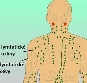 Non-Hodgkinův lymfom je nejrozšířenějším druhem zhoubného nádoru lymfatického systému.