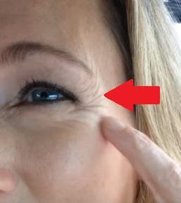 Jak si poradit s vějířkovitými vrásky v oblasti očí? Máme pro vás několik tipů.