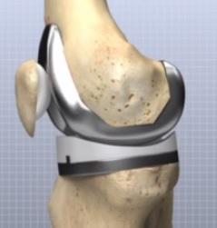 Totální endoprotéza kolenního kloubu - rehabilitace