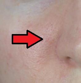 Chcete se zbavit červených tváří? Pomůžou vám možná naše rady.