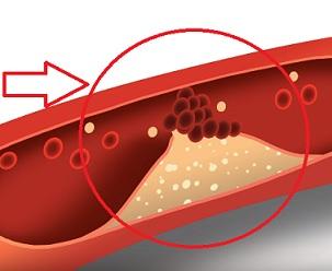 Jak vyzrát na špatný cholesterol? Správnou potravinou!